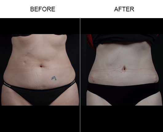 Before And After Abdominoplasty Surgery In Florida