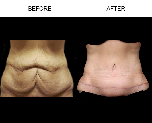 Before & After Abdominoplasty Surgery In Florida