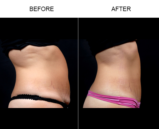 Mini Tummy Tuck Before & After