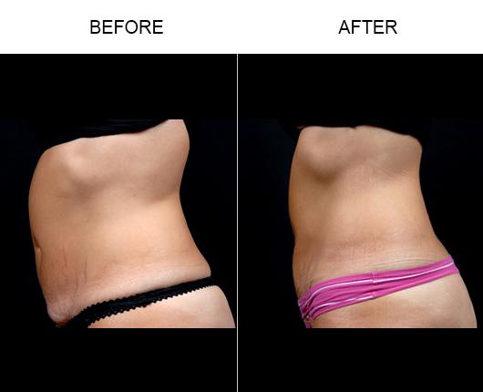 Mini Tummy Tuck Results