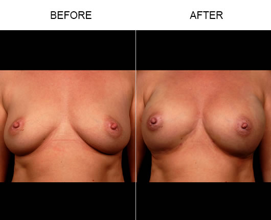 Naturalfill Breast Enhancement Before & After