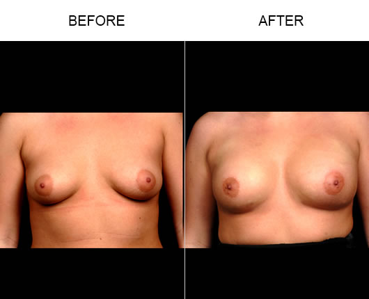 Naturalfill Breast Result