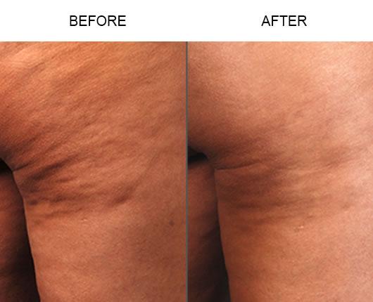 Cellulaze Before & After