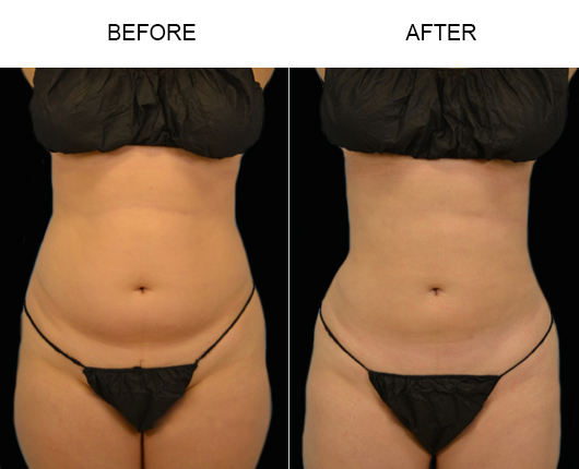 Before & After Liposuction Treatment