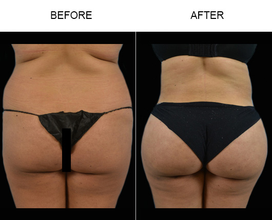 Florida Liposuction Surgery Before & After