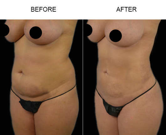 Before & After Liposuction Surgery In Florida
