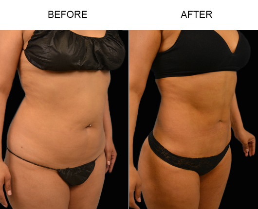 Florida Liposuction Treatment Results