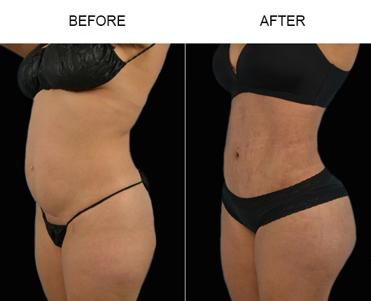 Lipo Surgery Before And After