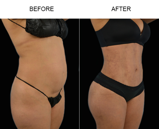 Lipo Surgery Before & After