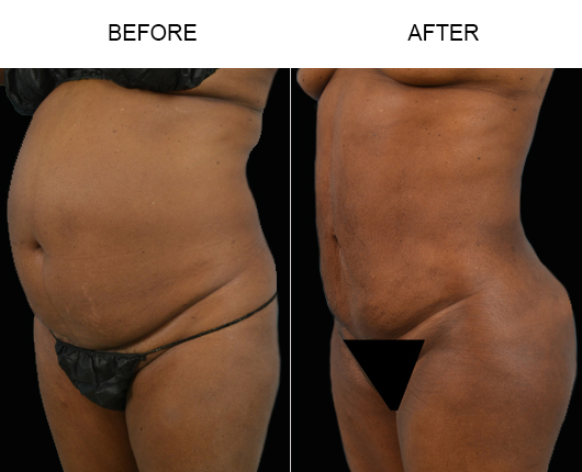 Before And After Lipo Surgery