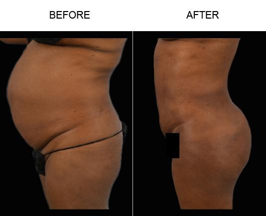 Lipo Surgery Results