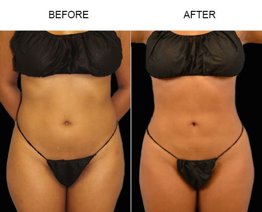 Lipo Treatment Before And After