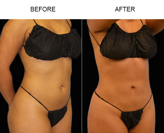 Lipo Treatment Before & After