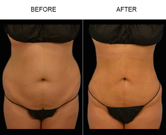 Before And After Lipo Treatment