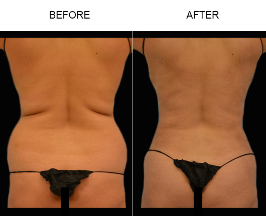 Before & After Lipo Treatment