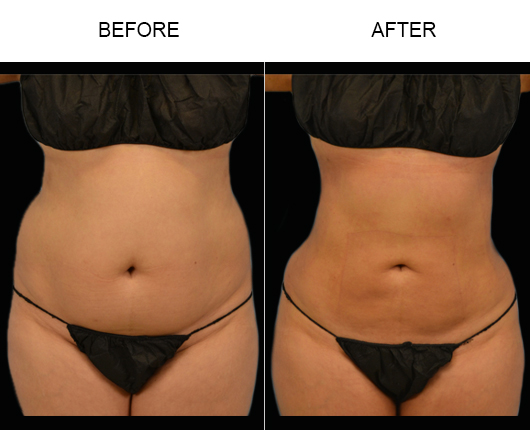 Lipo Treatment Results