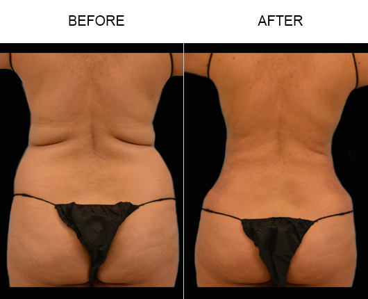 Florida Lipo Before And After