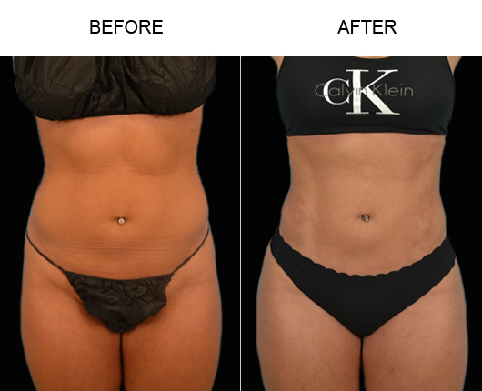 Florida Lipo Before & After