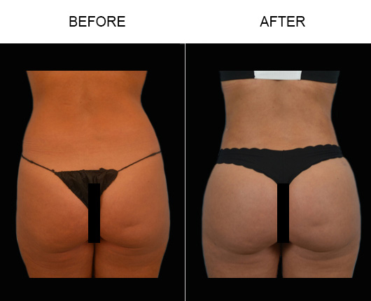 Before And After Lipo In Florida