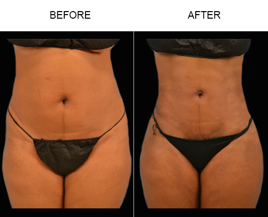 Florida Lipo Surgery Before And After