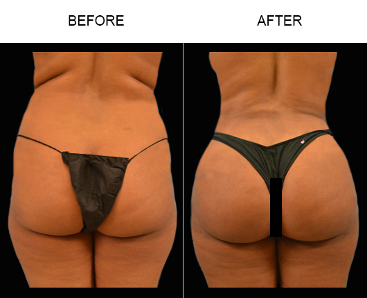 Florida Lipo Surgery Before & After