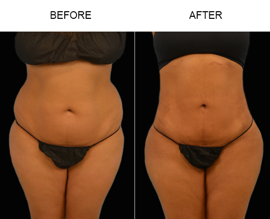 Before And After Lipo Surgery In Florida