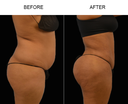 Before & After Lipo Surgery In Florida