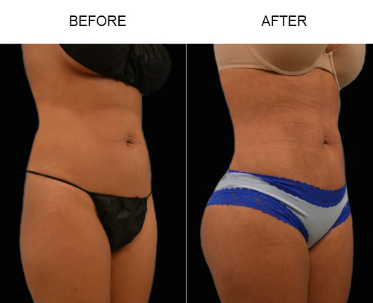 Florida Lipo Treatment Before And After