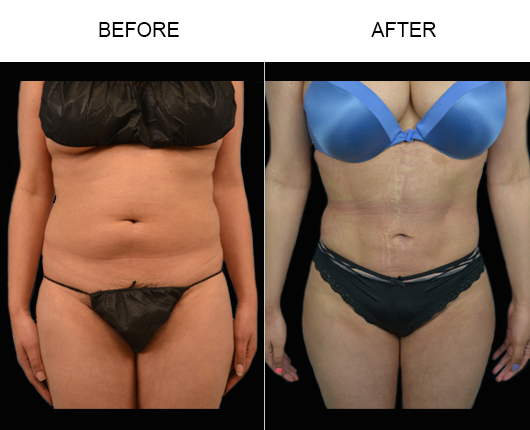 Florida Lipo Treatment Before & After