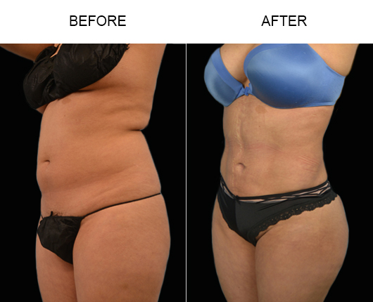 Before And After Lipo Treatment In Florida