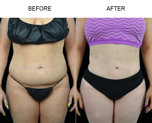 Before & After Lipo Treatment In Florida