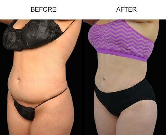 Florida Lipo Treatment Results