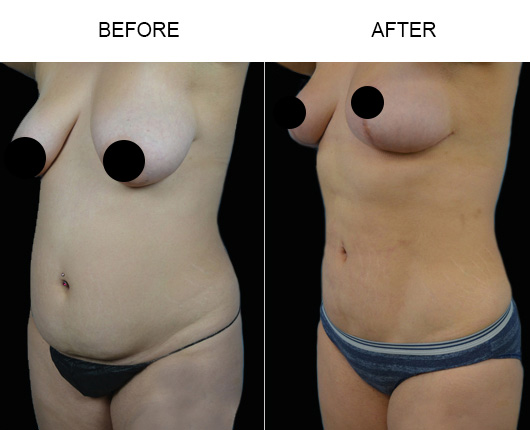 FL Liposuction Before And After