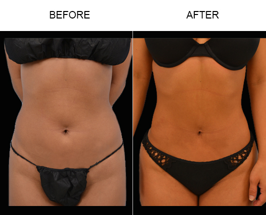 Before And After Liposuction In FL