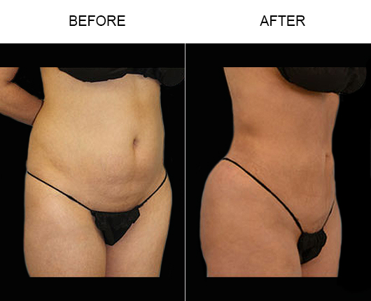 Before & After Liposuction Surgery In FL