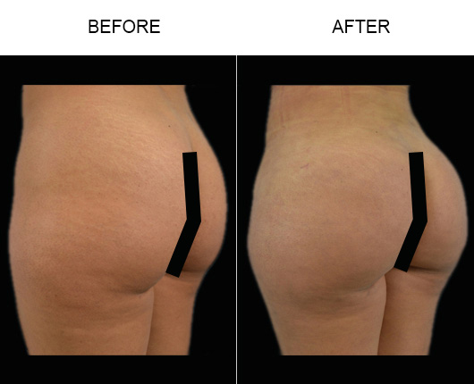Before & After Brazilian Butt Lift