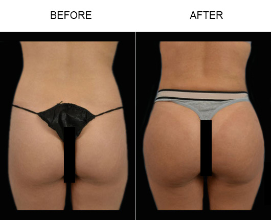 Brazilian Butt Lift Surgery Before & After