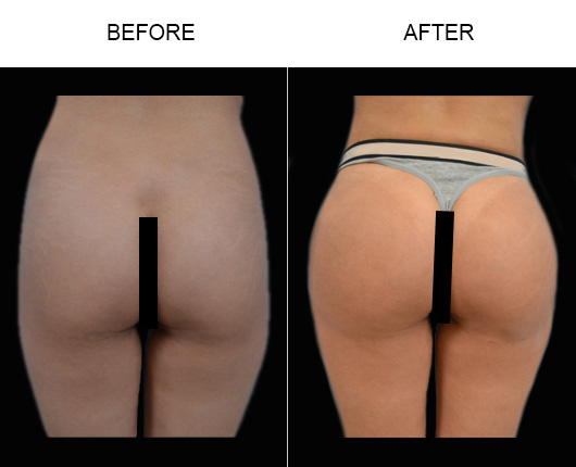 Before And After Brazilian Butt Lift Surgery