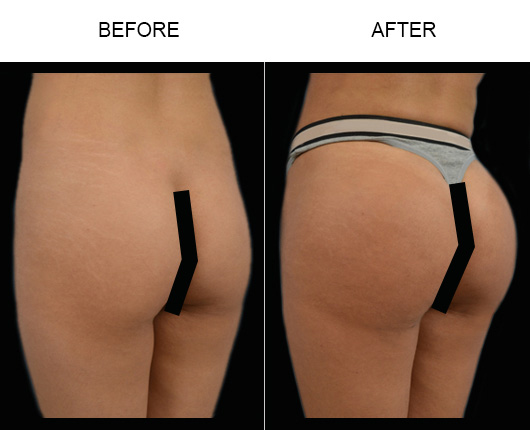 Before & After Brazilian Butt Lift Surgery