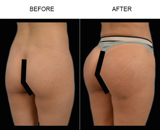 Brazilian Butt Lift Surgery Results