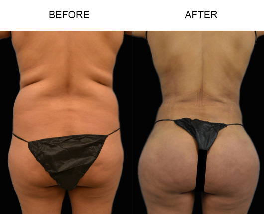 Brazilian Butt Lift Treatment Before & After