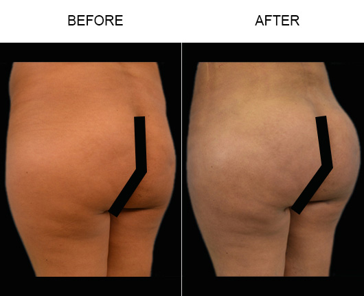 Before And After Brazilian Butt Lift Treatment