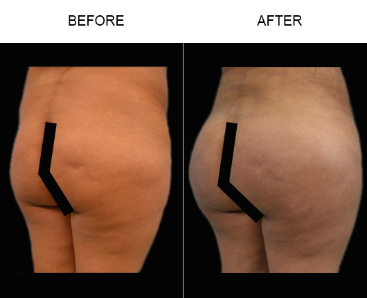 Before & After Brazilian Butt Lift Treatment