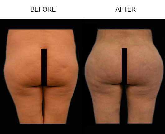 Brazilian Butt Lift Treatment Results