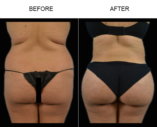 Florida Brazilian Butt Lift Before And After