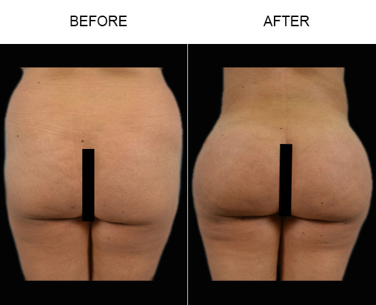Florida Brazilian Butt Lift Before & After