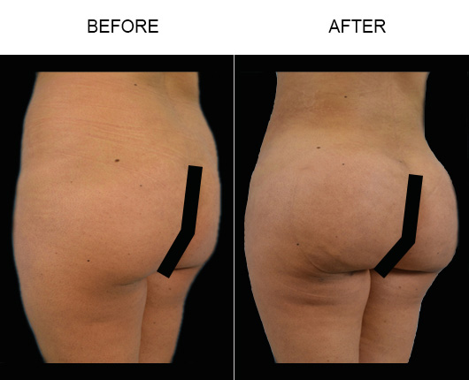 Before And After Brazilian Butt Lift In Florida