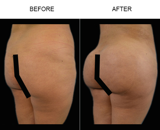 Before & After Brazilian Butt Lift In Florida