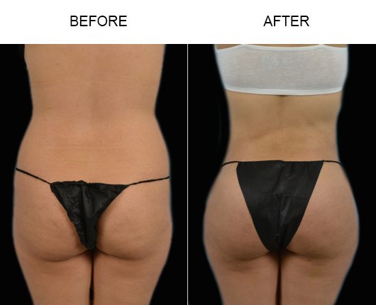 Florida Brazilian Butt Lift Results