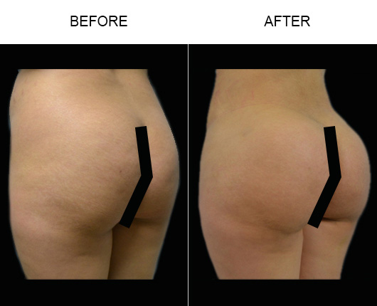 Florida Brazilian Butt Lift Surgery Results